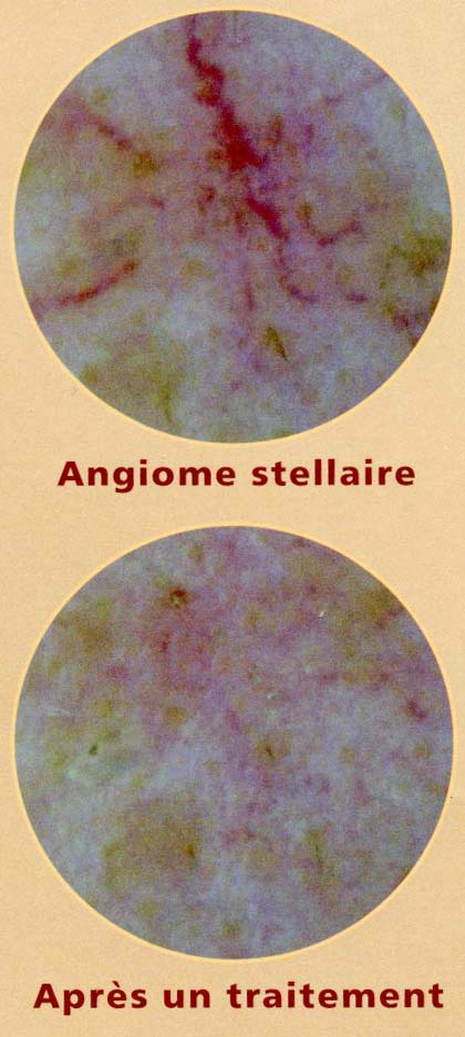 Angiome stellaire