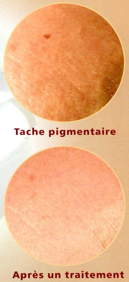 Léloignement laser de la pigmentation sur la personne les rappels de la photo